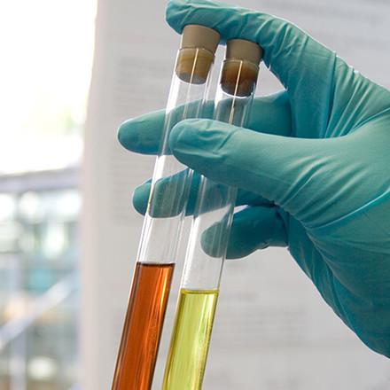 Untersuchungen im Blut, Urin und anderen Materialien